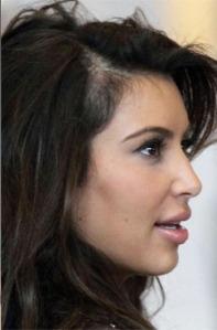 alopecia-celebrity-kardashian